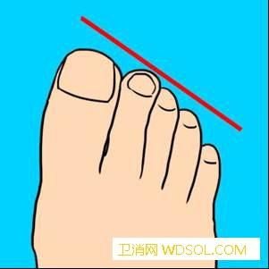 你的脚趾形状暴露了你的性格还敢再穿_根脚-脚趾-形状-