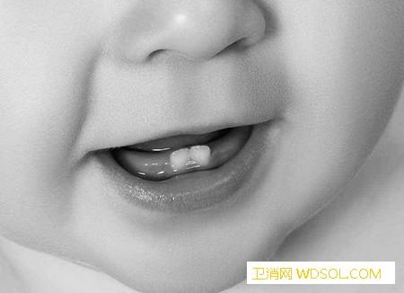 寶寶牙齒健康如何呵護_恒牙-換牙-齙牙-乳牙-