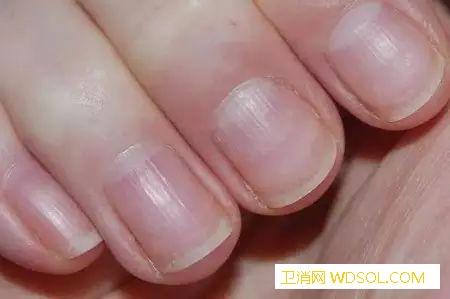 宝宝指甲上的竖纹、小白点说明什么_角质化-白点-月牙-指甲-