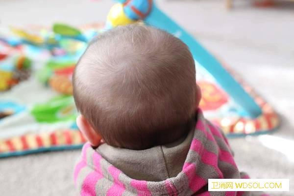 婴儿枕秃什么时候能好_什么时候-室温-头发-出汗-