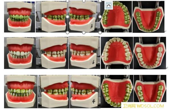 电动牙刷怎样选?中消协发布比较试验结果和消费_噪声-样品-清洁-试验